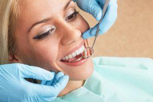 dental clinic budapest fogszabalyozas