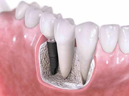 fog implantáció