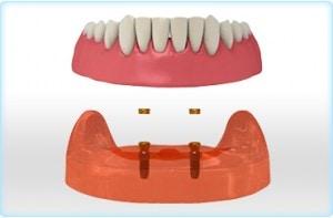 teljes fogsor implantáció