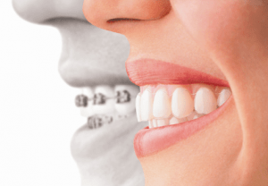 dental-clinic-fogszabalyzas_clearsmile-budapest