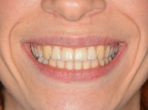 felnőttkori fogszabáyozás