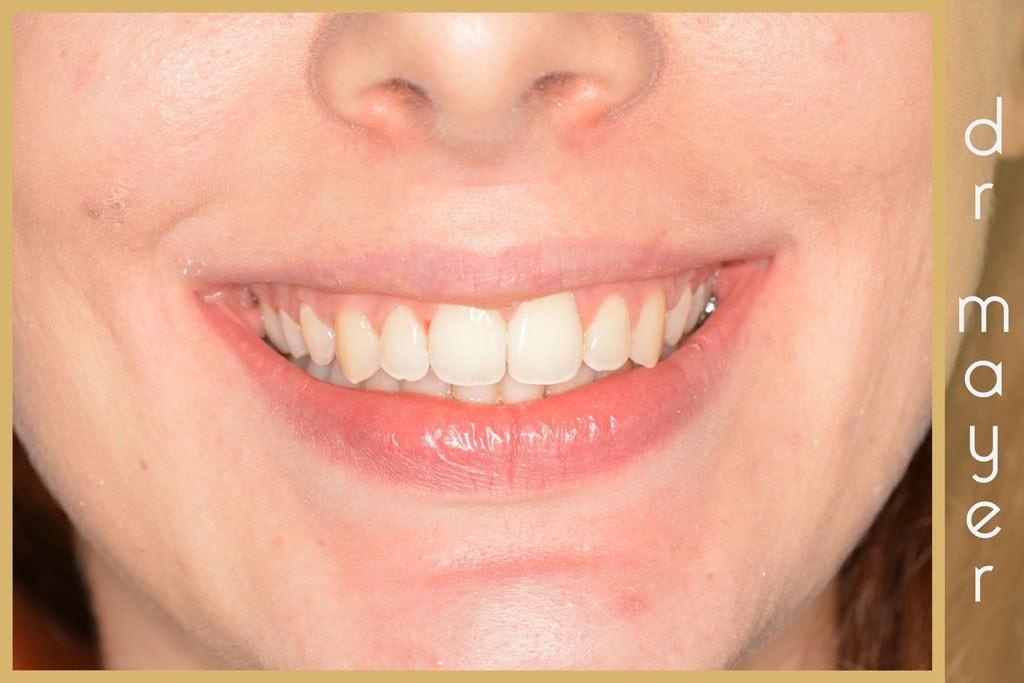 Új mosoly a metszőfog javítása után
