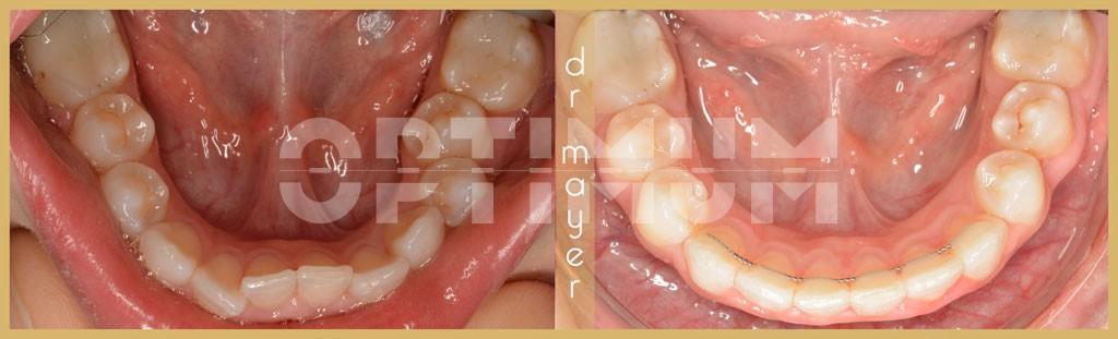 női fogszabályozás
