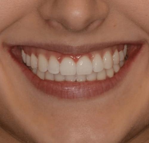 onfeledt-mosoly