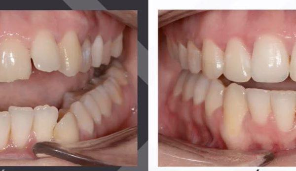 kusza fogak fogszabályzás